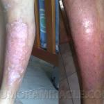 leg skin problems